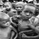 group of malnourishe children